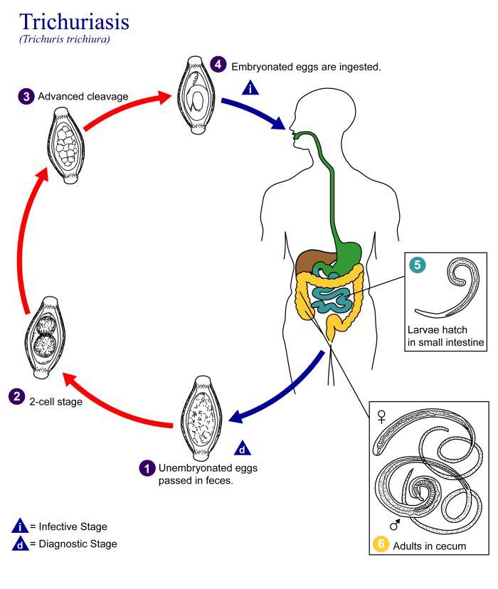 a pinworms kezelése emberben paraziták az emberek vérében a székletben