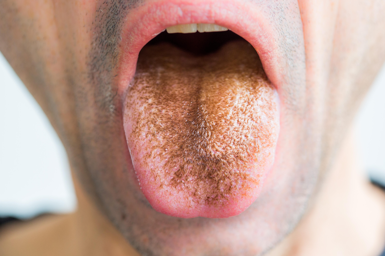ha a száj nyála rossz szagú