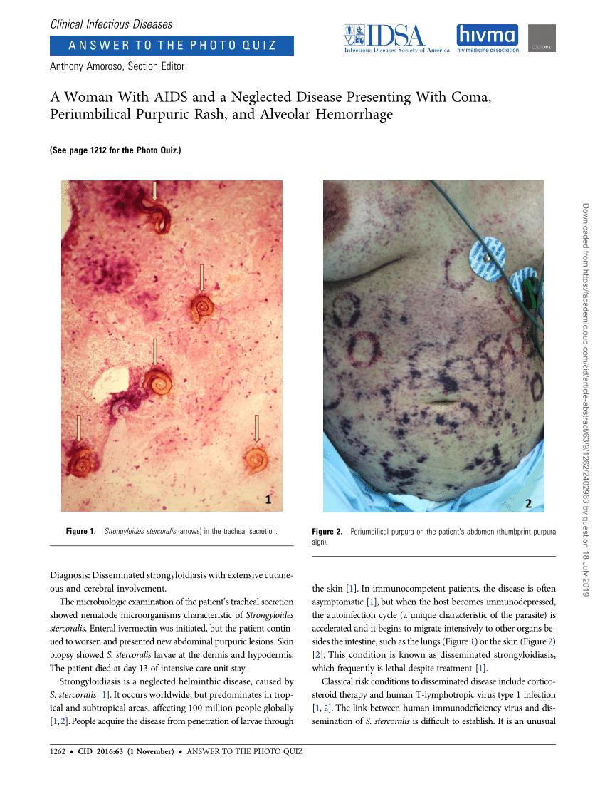 strongyloidosis pete az ember körféreg légúti szervei
