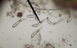 kerekféreg kezelés antitestei hogyan lehet eltávolítani a széklet szagát a szájból
