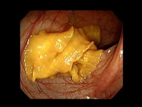 diphyllobothriasis átvitel Milyen tünetei vannak az aszcariasisnak