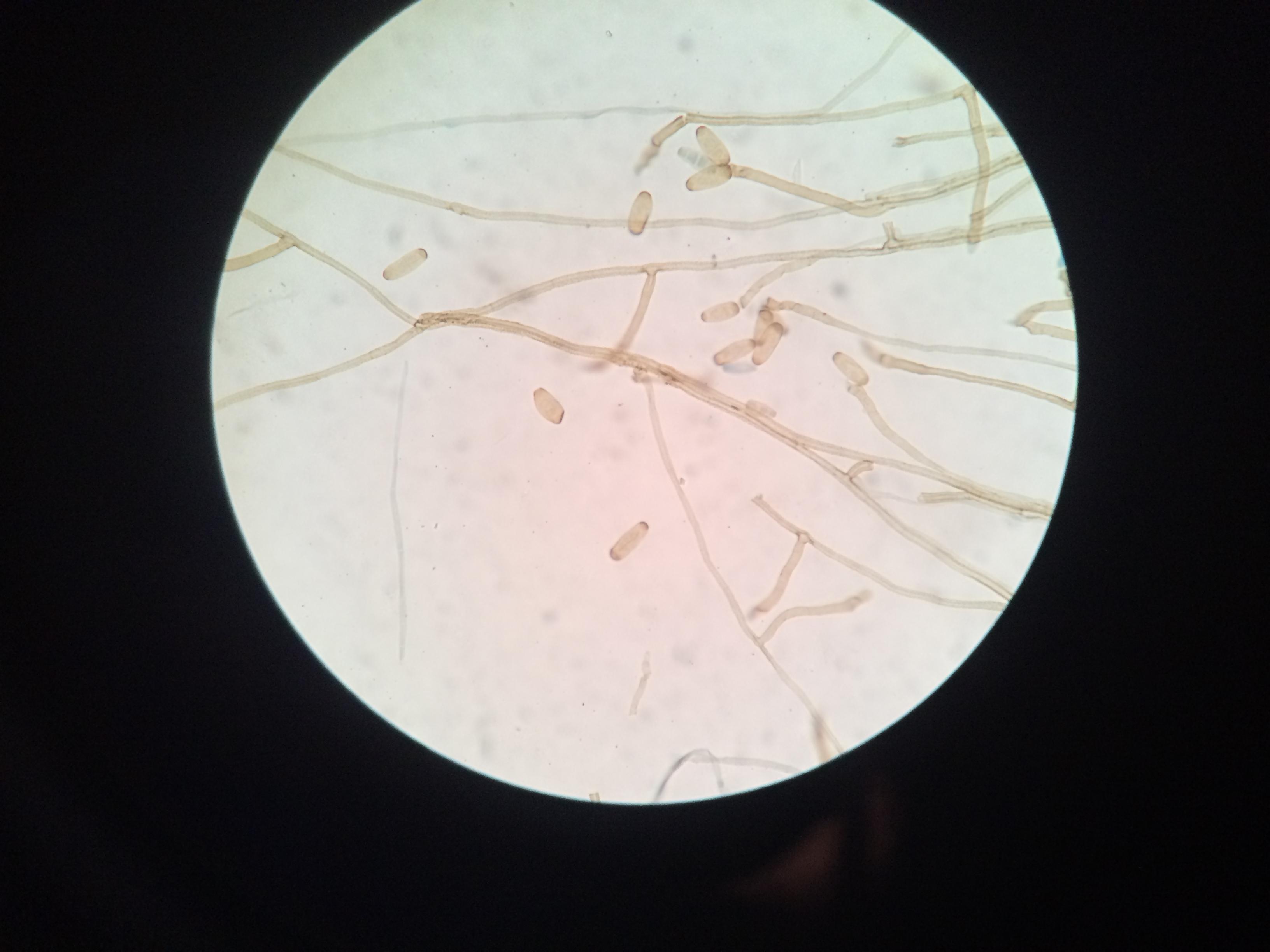a gyermekekben található pinworms átvitt formájában gyógyszer a betegekkel rendelkező férgek számára