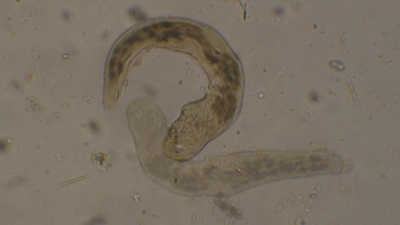 hogyan lehet megszabadulni a parazitáktól a bőrön mi a tojásférgek