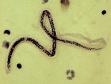 Fonálféreg fertőzés