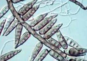 Allergiát okozó paraziták. Mikor kell kezelni férgeket - Jamur helminthosporium sp
