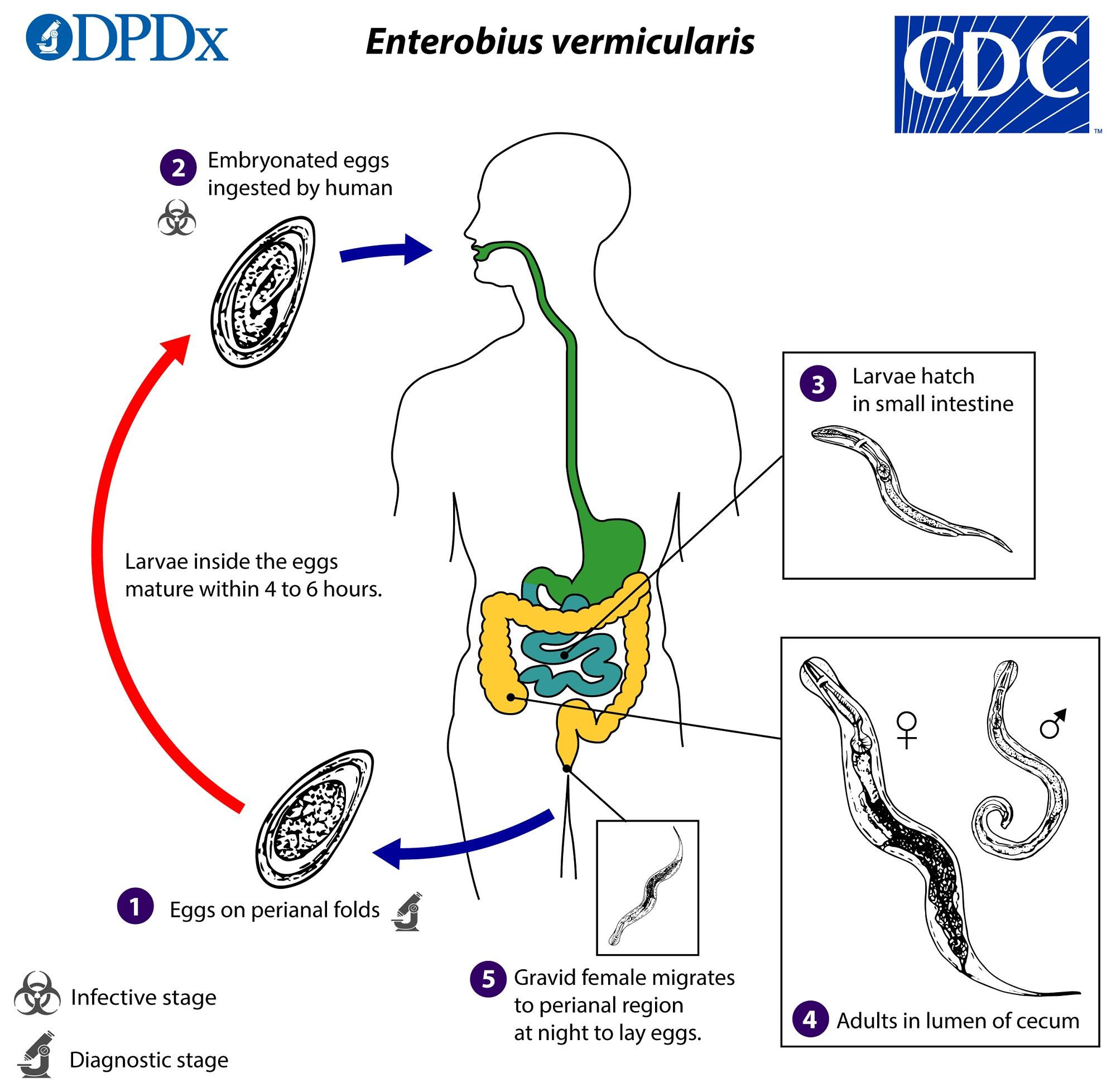 enterobiosis etiológia
