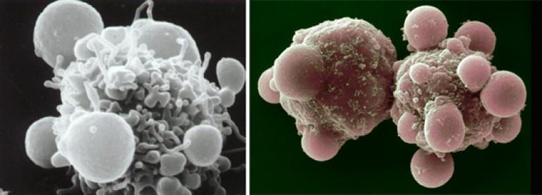 a giardiasis kórokozójának átterjedésének fő oka a