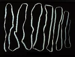 helminthiasis megelőzése és kezelése gyógynövények a paraziták testének tisztításához