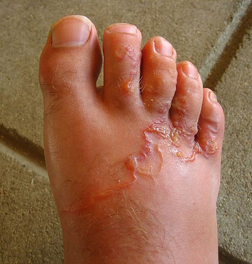 paraziták tünetei a felnőtt testében milyen betegség szaga van a szájból acetonnal
