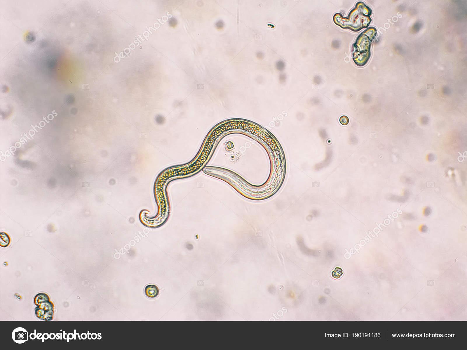 helminth tojások a talajban ureaplasma unidox antibiotikum kezelése