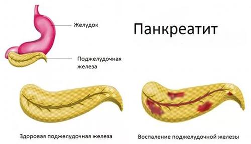 a paraziták inkább élnek fahéj szaga a szájból