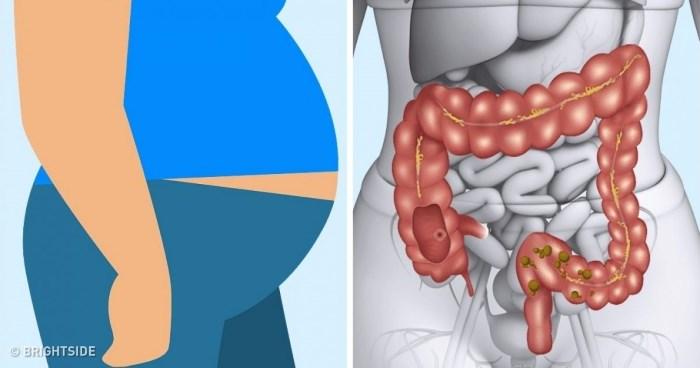enterobiasis tünetek kezelése gyermekeknél