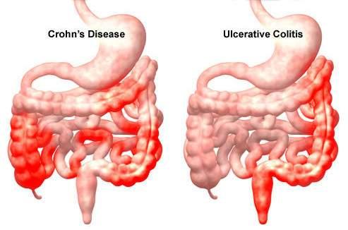giardia cysts cytology a paraziták tünetei az emberi test kezelésében