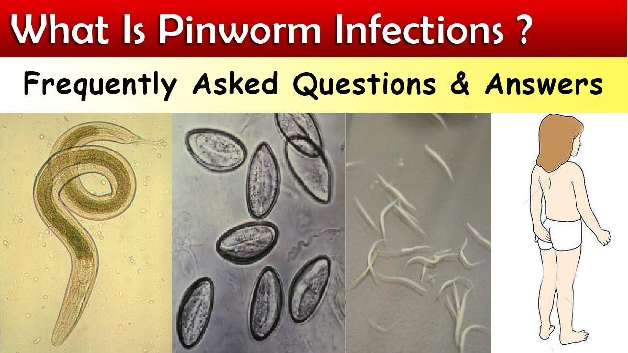 A pinworm tabletták nem segítenek