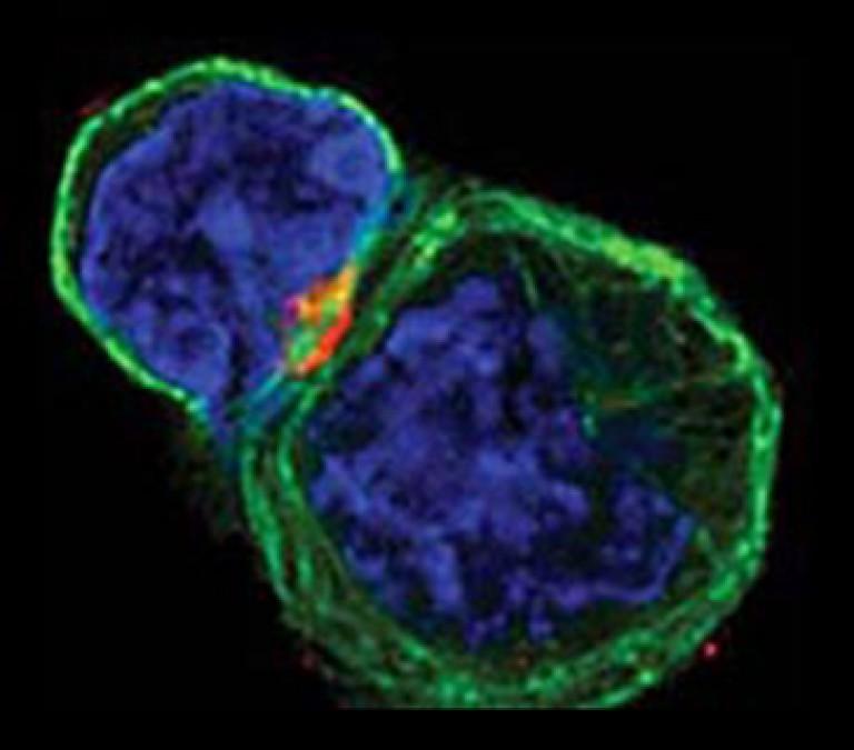 a toxoplazmózis inkubációs periódusa ezoterikus szájszag