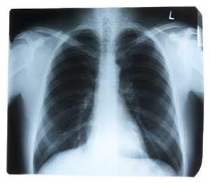 a tüdő röntgenfelvételei