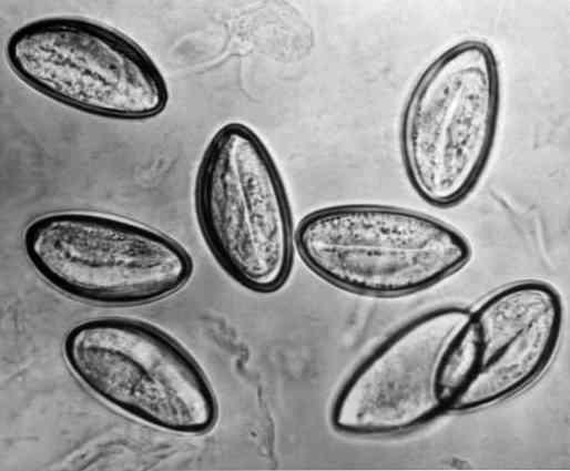 Pinworms: kezelés (gyógyszerek). Cure for pinworms gyermekeknek