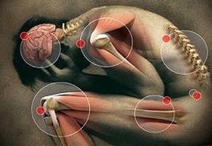 hatékony gyógyszer az emberek parazitáira gyógyszerek felnőttkori enterobiasisra