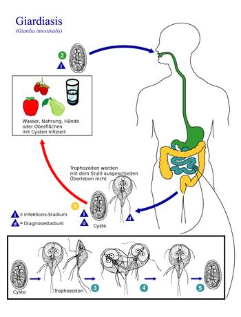 giardia infektion symptome