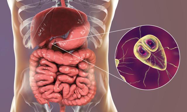giardia symptomer az étel a rossz lehelet oka