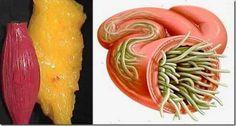 mit lehet inni a parazitákból a tablettákban
