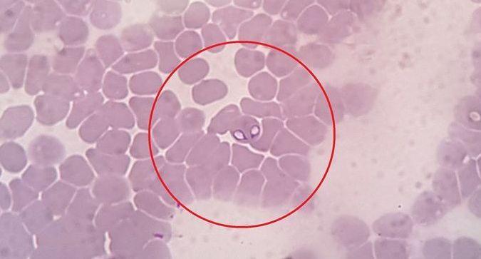 klinikailag gyógyult parazita gyógynövény férgek férfiak számára videó