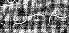 helminták fotó tünetei és kezelése paraziták és vektorok 2020