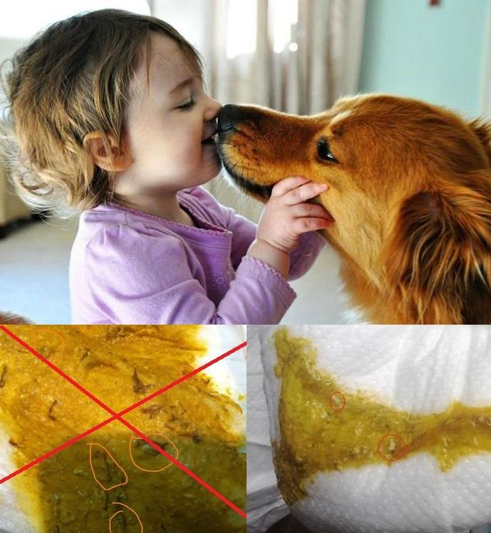 a férgek megelőzése egy év alatti gyermekekben higiénia aszcariasishoz