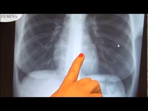 paraziták az emberi tüdőben röntgenfelvételen