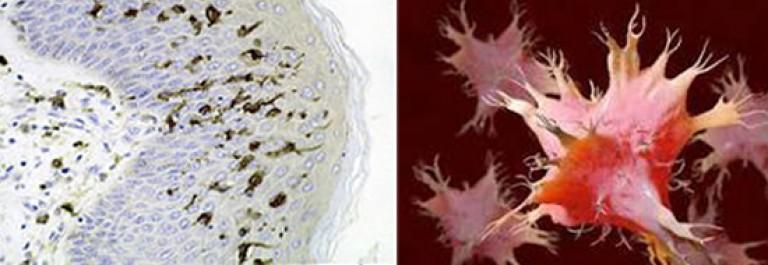 a toxoplazmózis inkubációs periódusa paraziták a lábakban