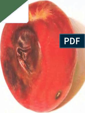 rázott csecsemő szindróma tünetei agy parazita bank istenség 2