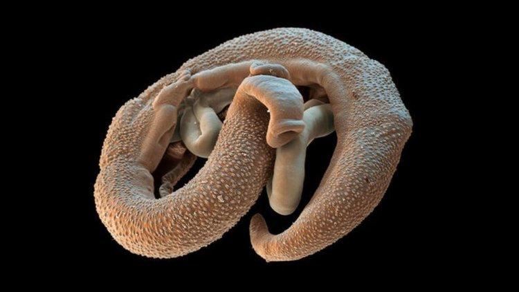 paraziták a gyomor gyógymódjaiban a szarvasmarha szalagféreg test magában foglalja